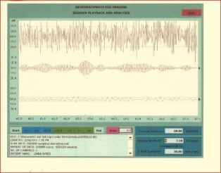 Capture eeg 3