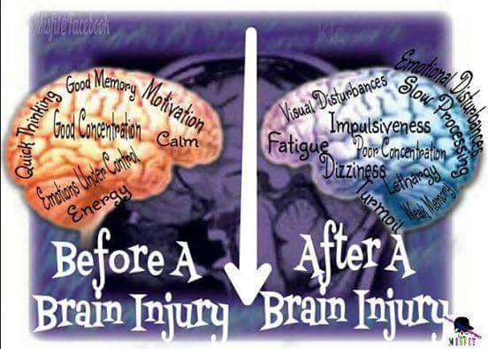 Brain Injury - BEFORE and AFTER WorkComp